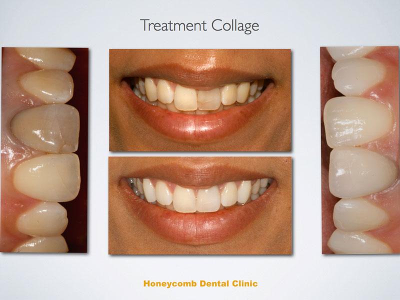 anterior-tooth-whittening.jpg