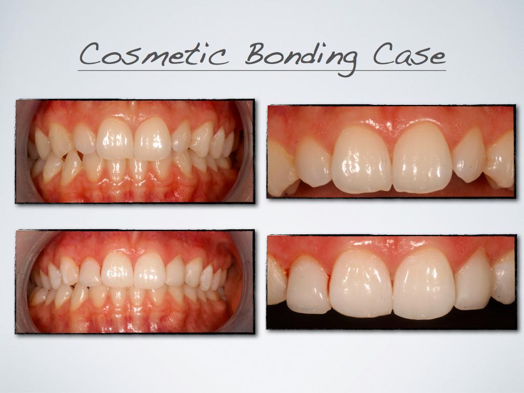 Case_1-_composite_bonding.jpg
