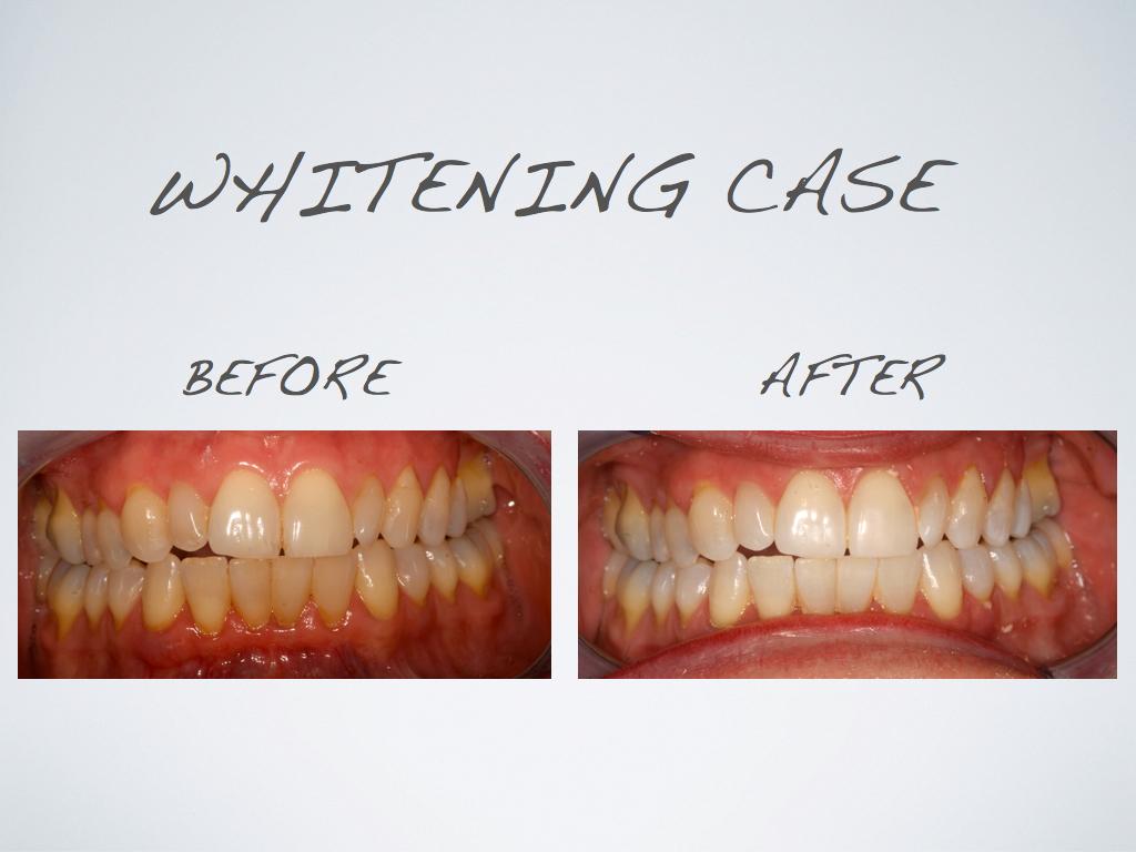 whitening_case_1.jpg