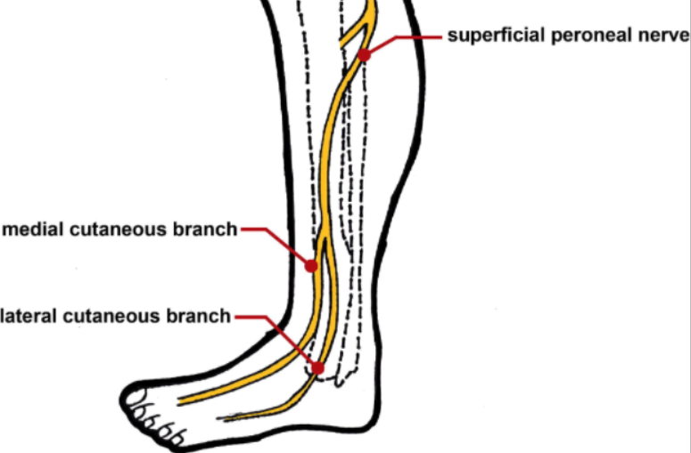 The superficial peroneal nerve  branches from the common peroneal nerve just below the fibular head, then runs down the lower leg.  Link to image source.