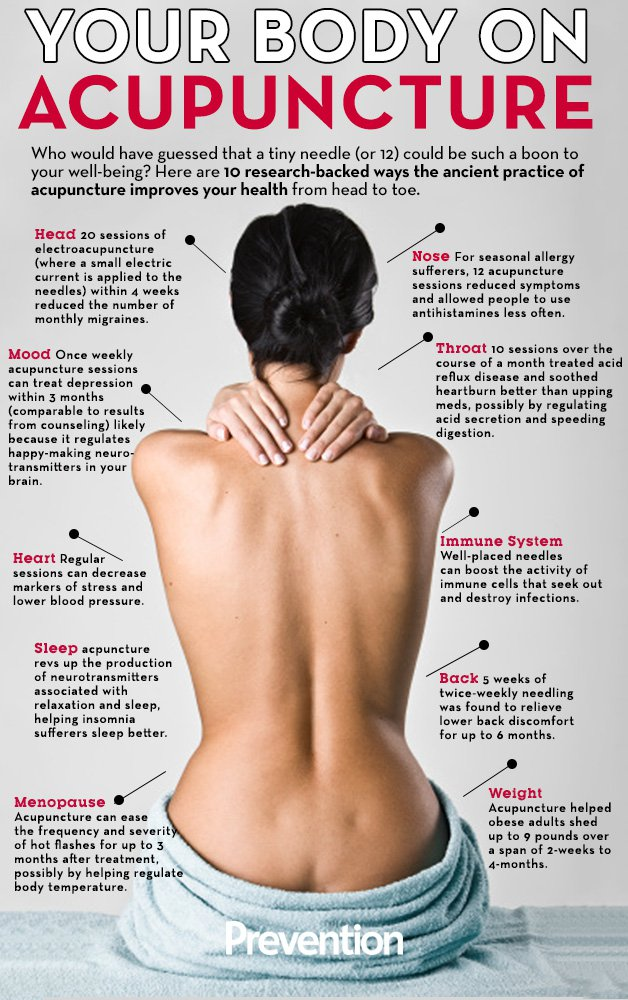10 Great Reasons to try Acupuncture - backed by research and reported in PREVENTION magazine.