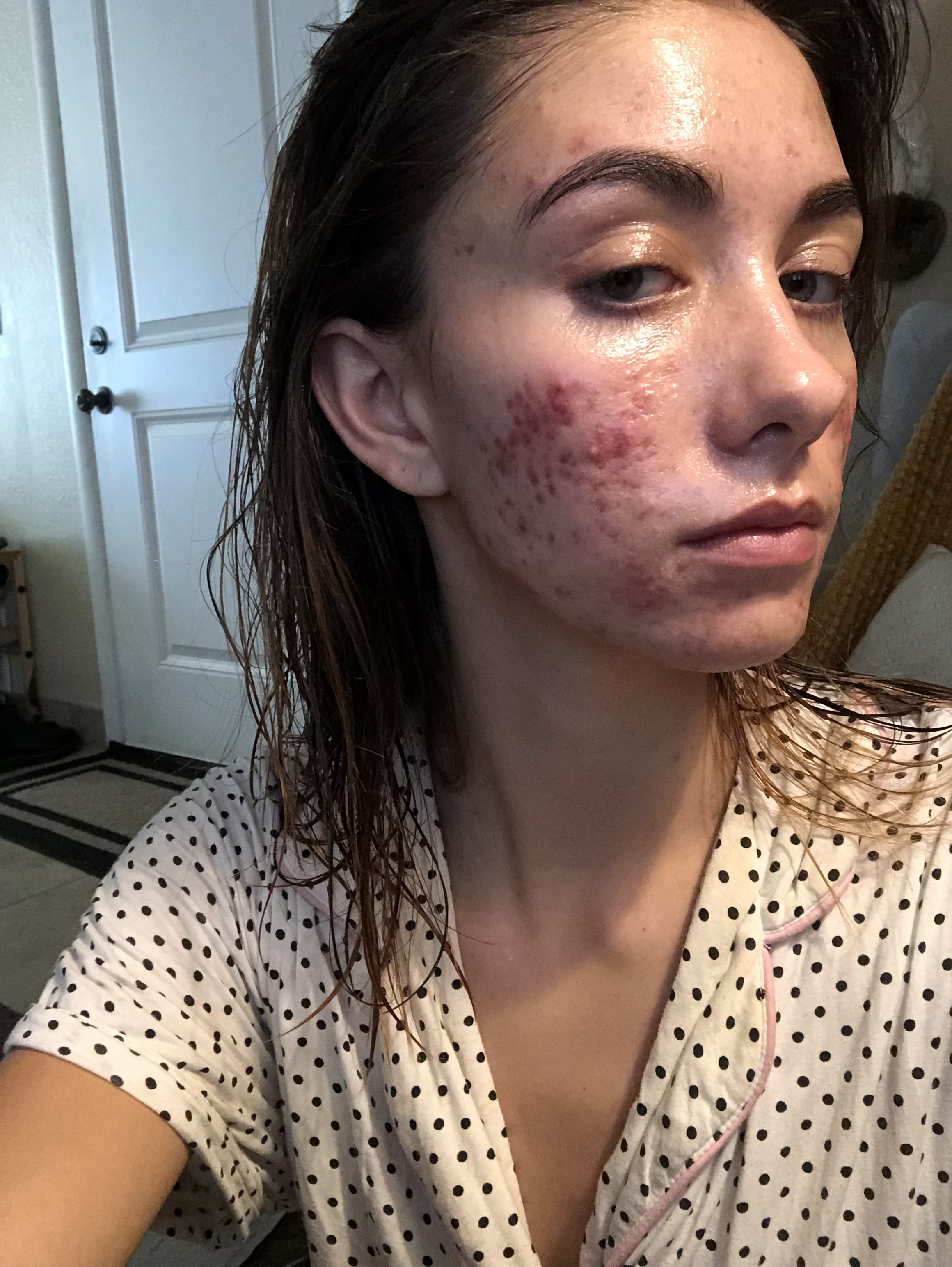 My skin at its worst. I had terrible, excruciatingly low confidence. I didn't see my friends for months, and I felt so hideous.