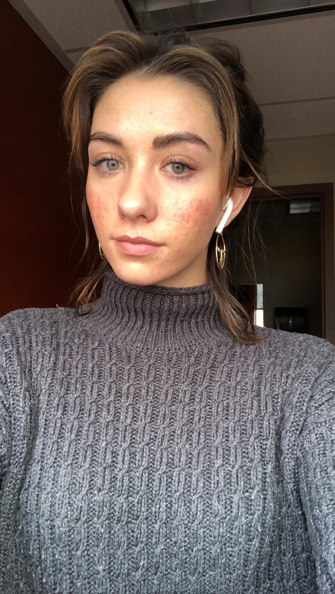 My skin just one month ago featuring the air pods I definitely didn't realize were there. Yay, skin is so much better! Here, I finally felt confident again.