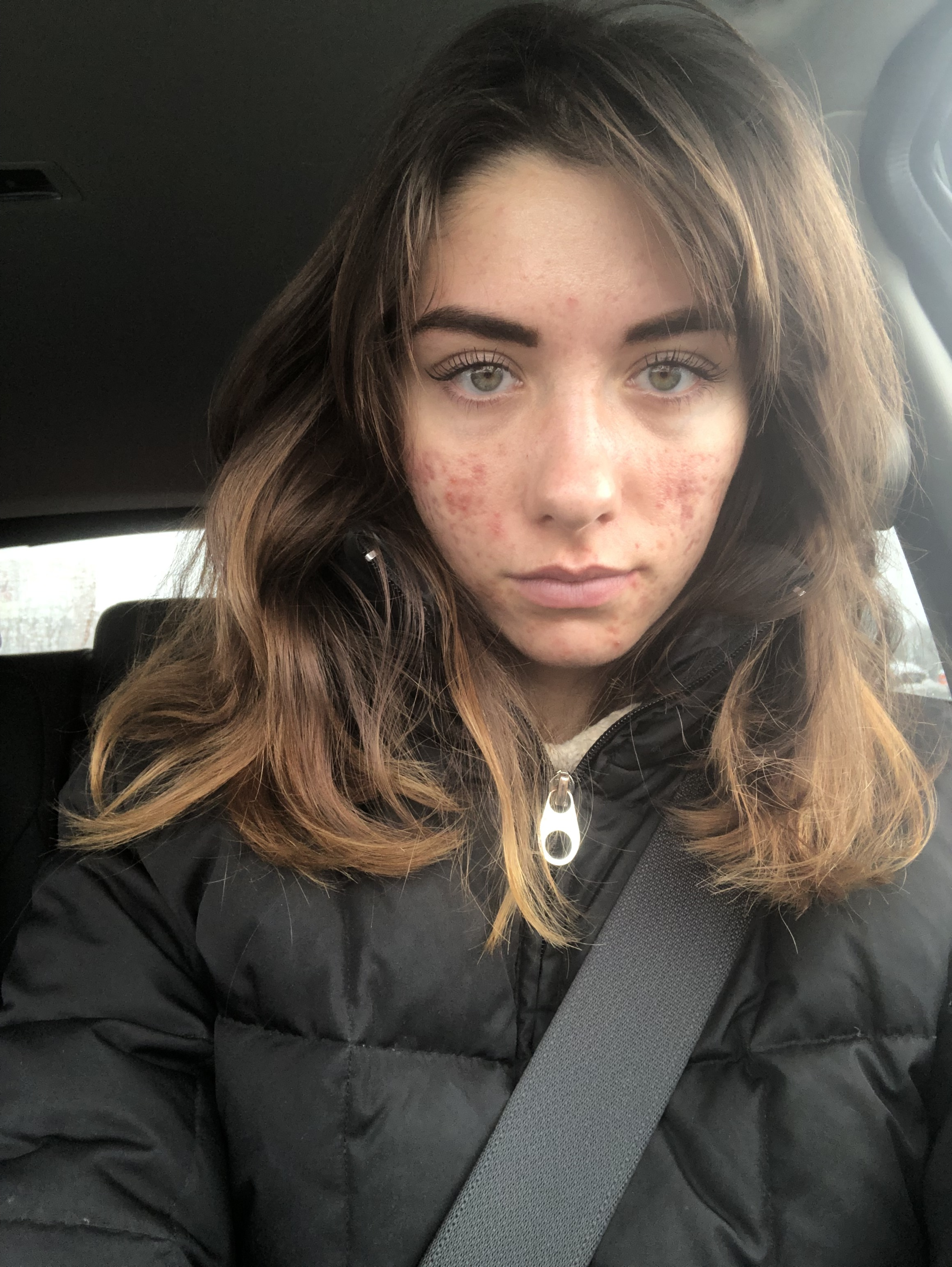 My skin about 5 months ago. Not quite at its worse, but pretty bad. Obviously it didn't stop me from going out makeup-free.