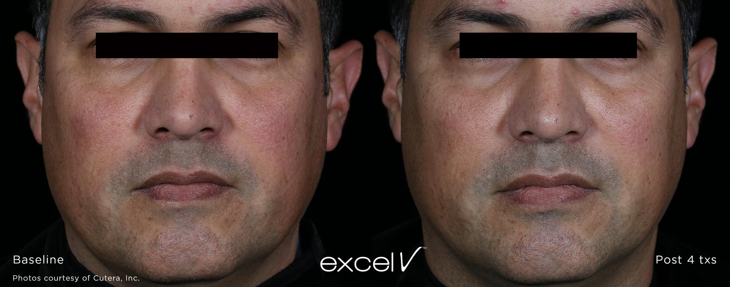 excelV_LG_Revitalization_1.jpg