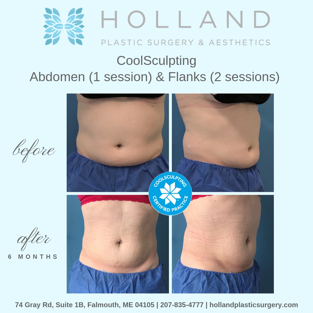 A.W. CoolSculpting.jpg