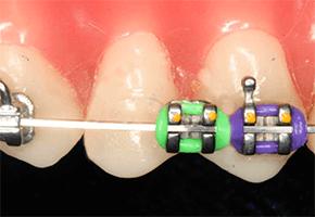 braces-broken-bracket.png