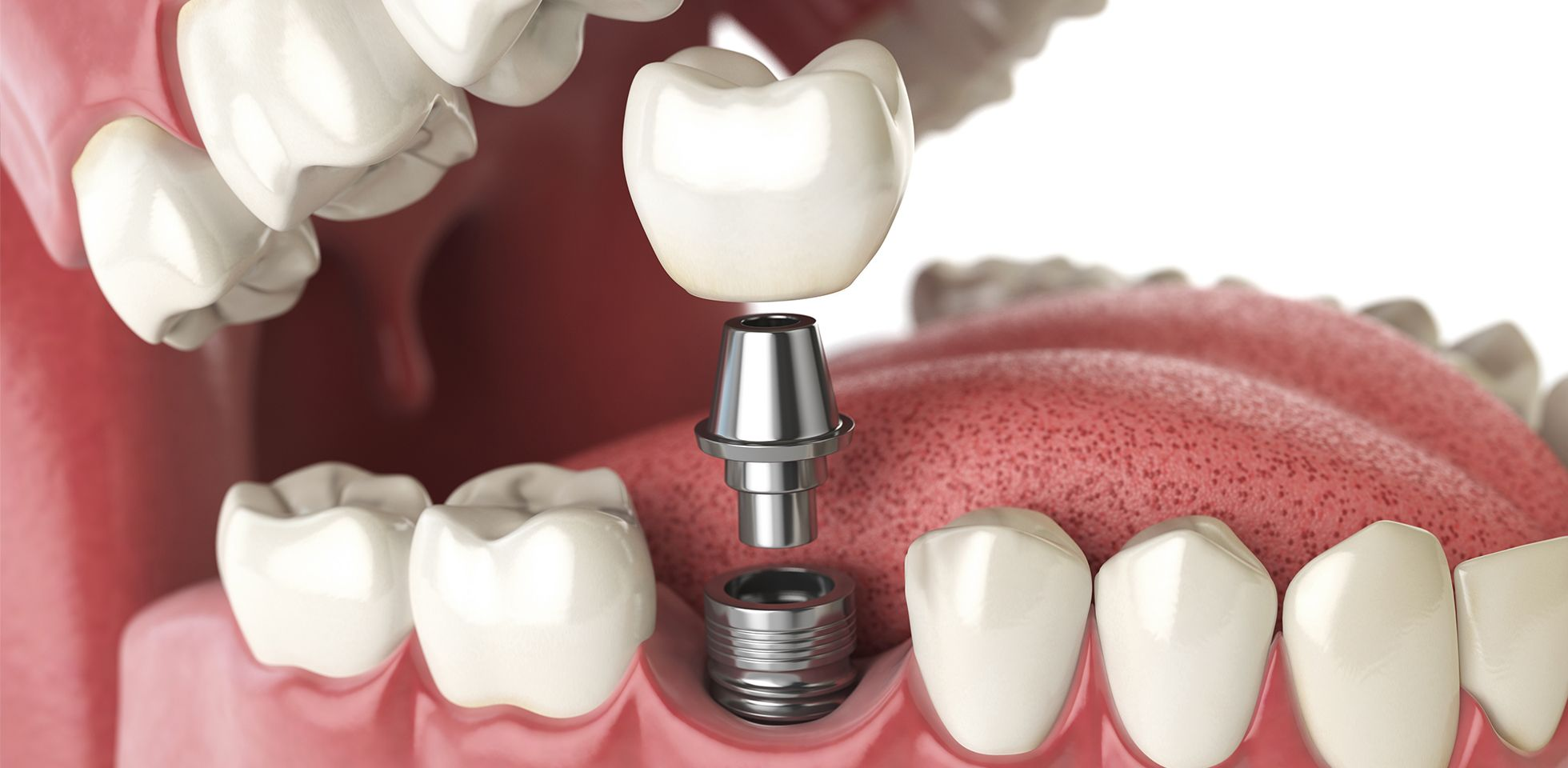 Cosmetic Dental Implants In Colombia For A Third Of The Price With Dentist Dr. Julio Oliver 2
