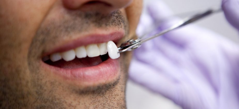 How To Find The Best Colombian Cosmetic Dentist For Your Porcelain or Composite Veneers