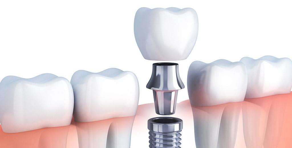Dental Implant - Dental Tourism Colombia (Dr. Julio Oliver, Cartagena)