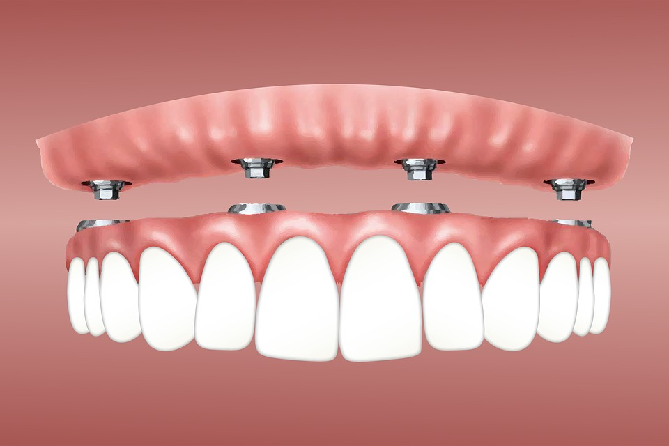 Getting All On Four Dental Implants in Cali, Colombia (Best Price, Travel Cost, and More) 3