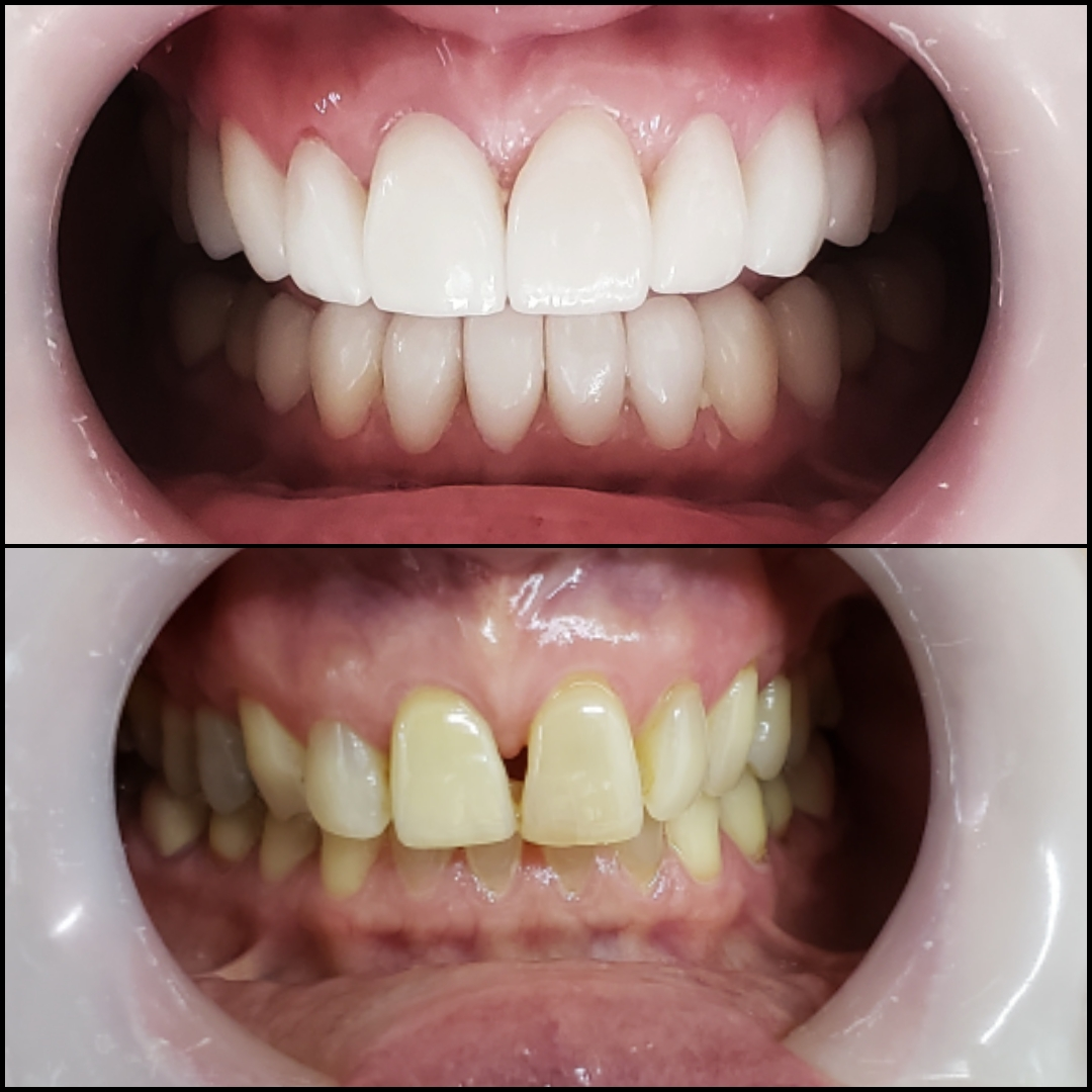Beatrice Before After 1 - Dental Tourism Colombia (Dr. Julio Oliver, Cartagena)