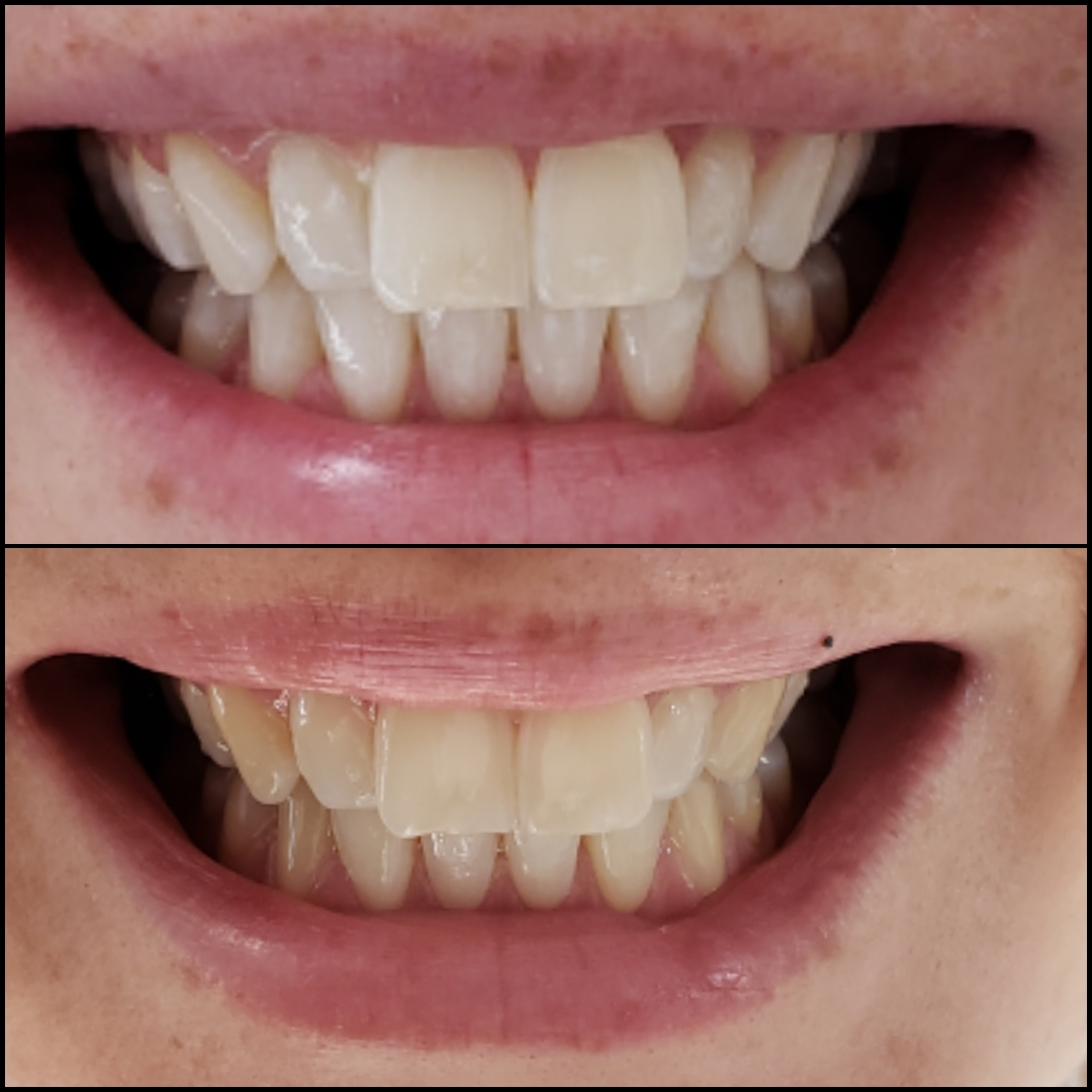 Beth Laser Teeth Whitening in Cartagena Before After - Dental Tourism Colombia (Dr. Julio Oliver)