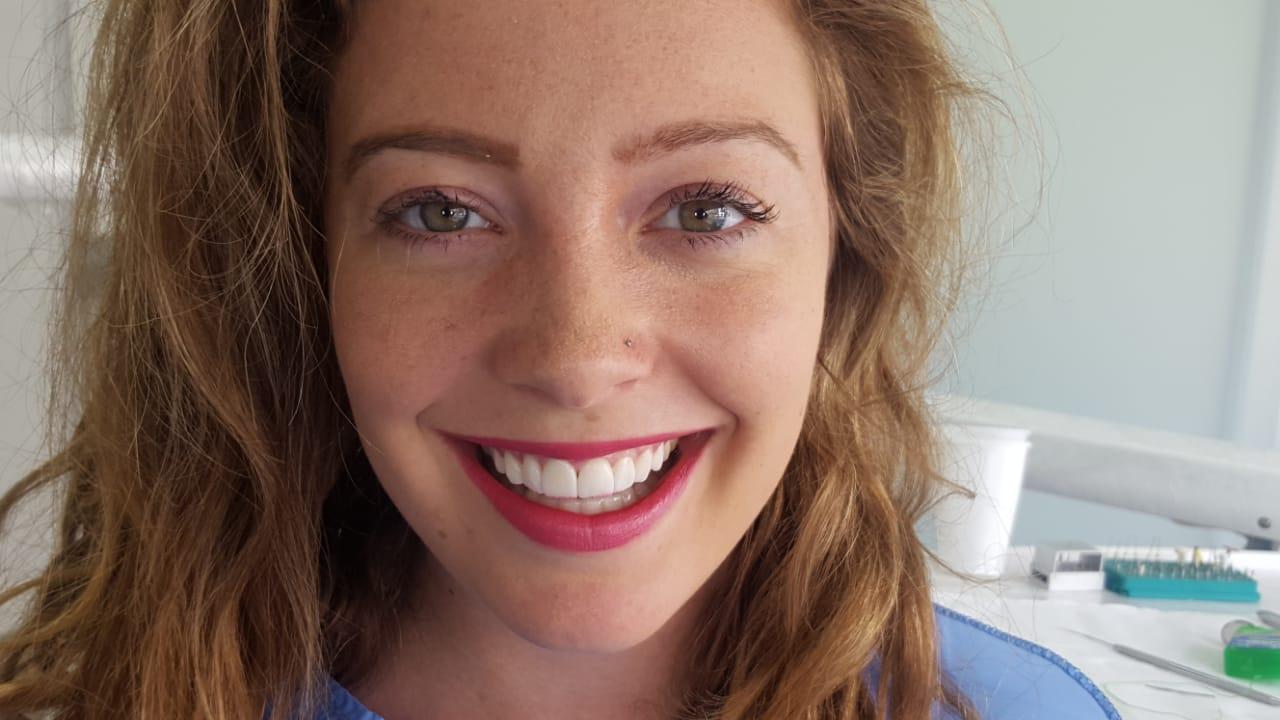 Olivia Porcelain Veneers Cartagena Dental Tourism Colombia