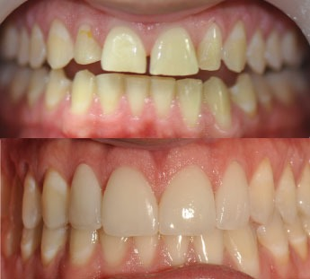 Veneers - How to save thousands by getting dental work in Medellin, Colombia