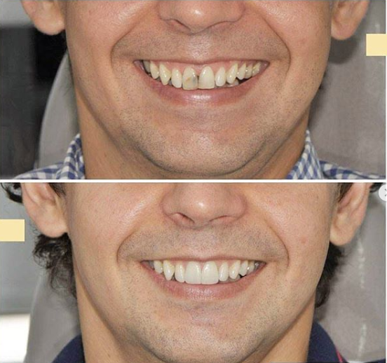 Veneers in Medellin - How to save thousands by getting dental work in Medellin, Colombia