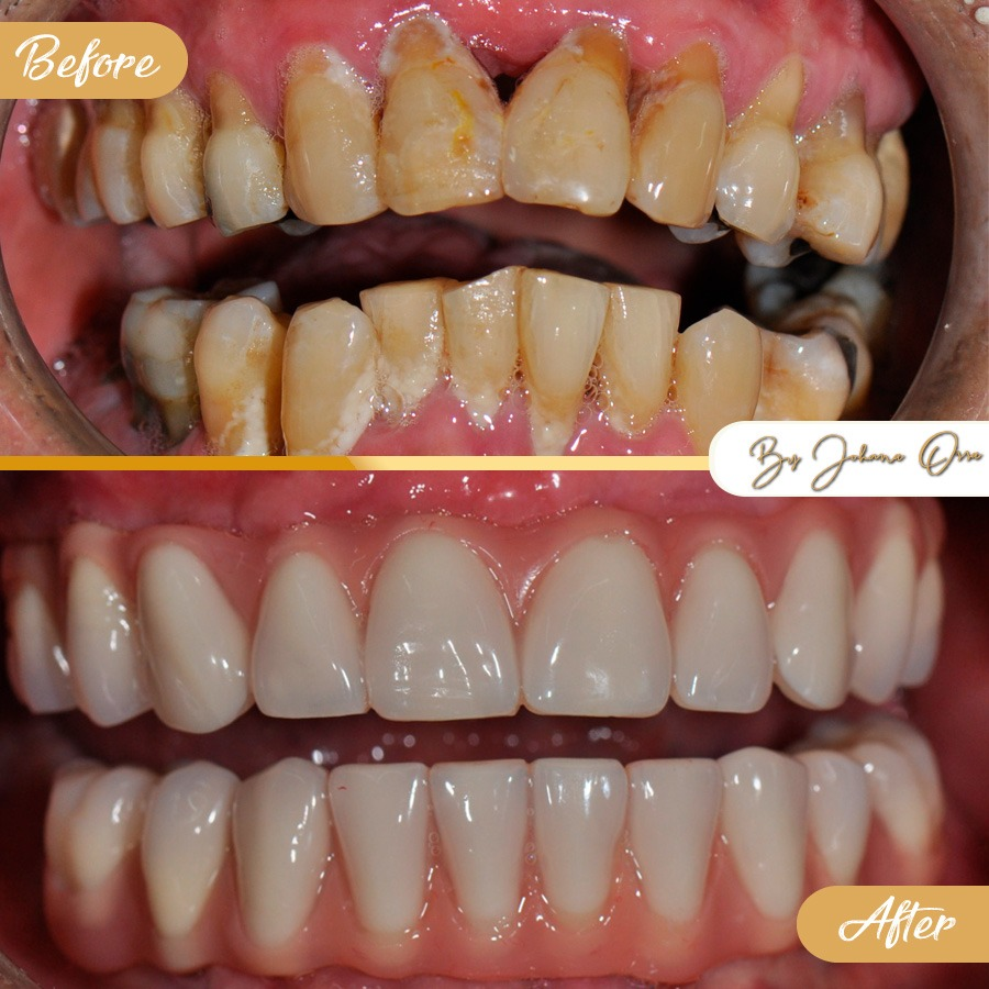 Porcelain Veneers Before After - How to save thousands by getting dental work in Medellin, Colombia