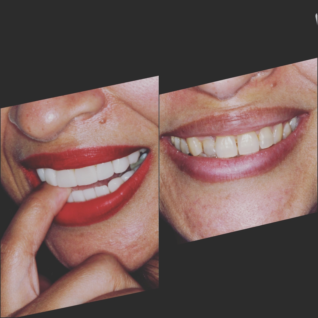 Andrea Porcelain Veneers in Cartagena Before After - Dental Tourism Colombia (Dr. Julio Oliver).
