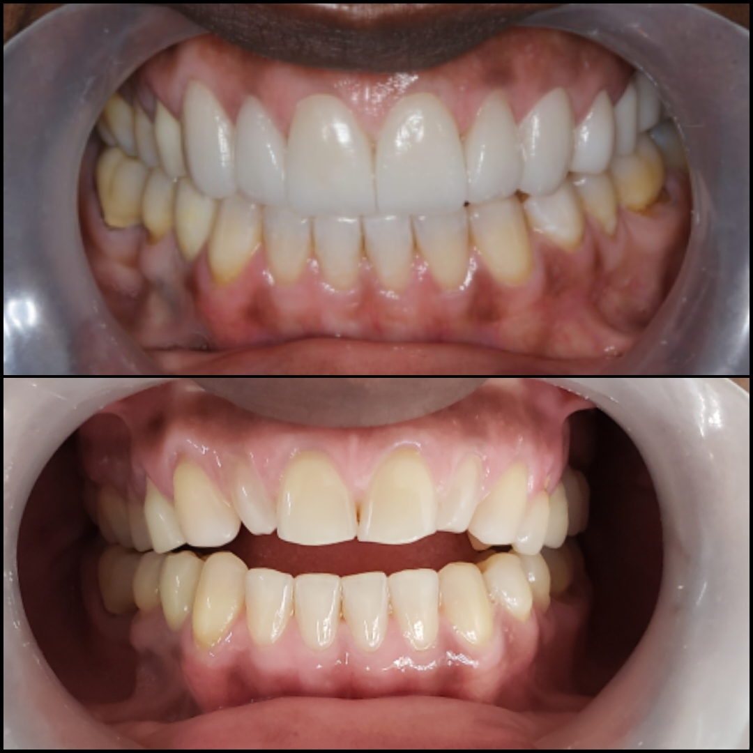 Suzie Porcelain Veneers - How to save thousands of dollars by getting dental work in Cali, Colombia