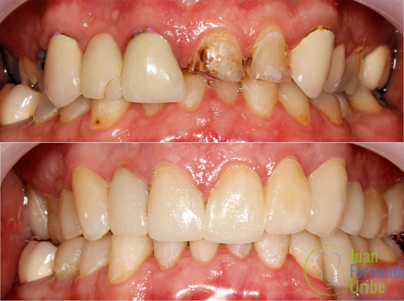 Porcelain Veneers - Not All Cosmetic Dentists in Cali, Colombia Are Created Equal