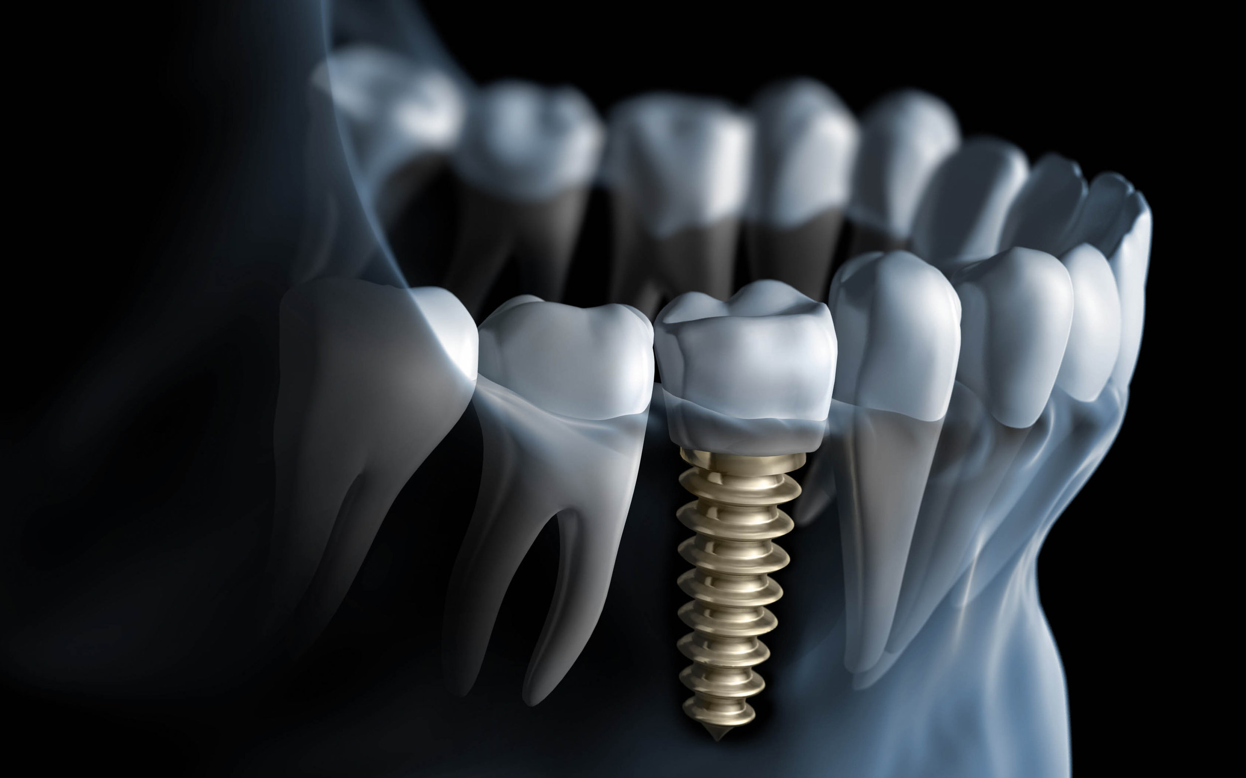 Single dental implant - The cost of dental implants in Colombia