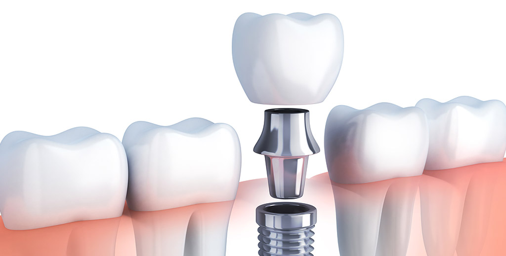 Single implant - The cost of dental implants in Medellin, Colombia