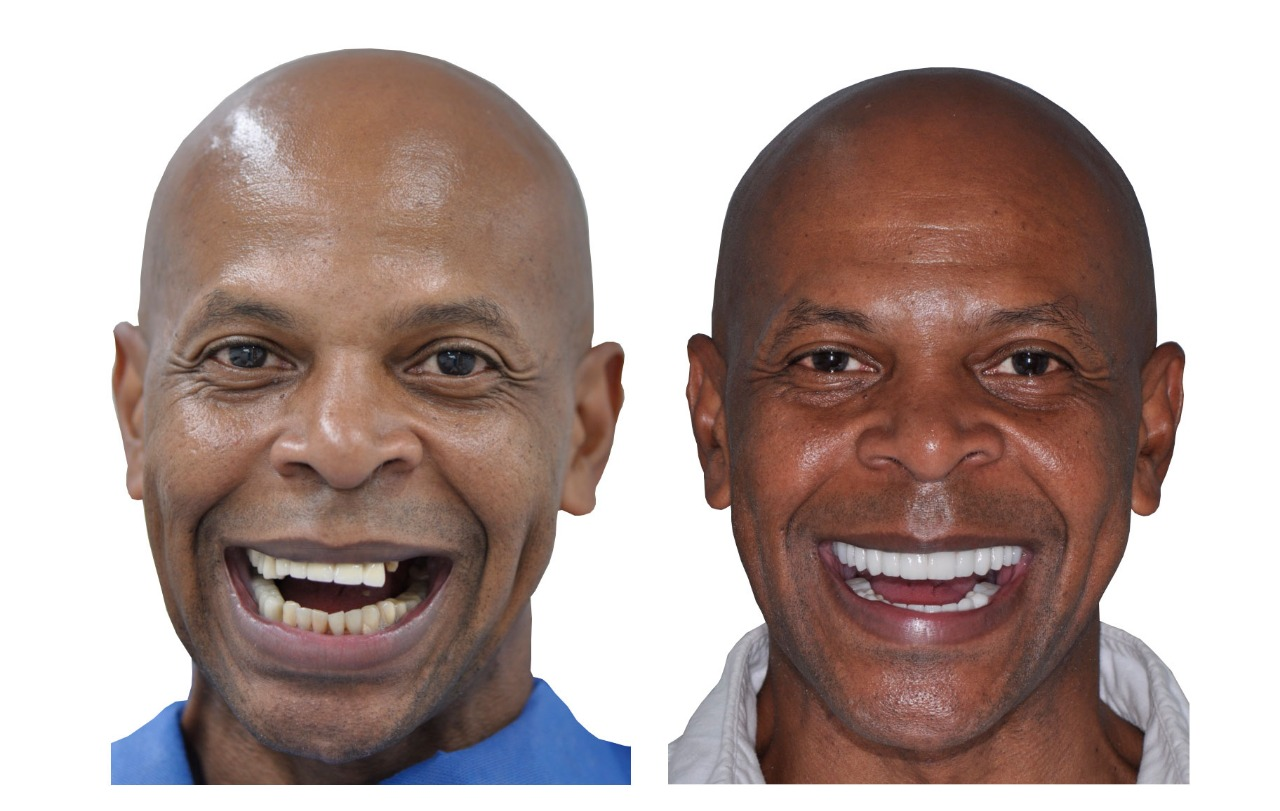 David before and after - The cost of dental implants in Cali, Colombia