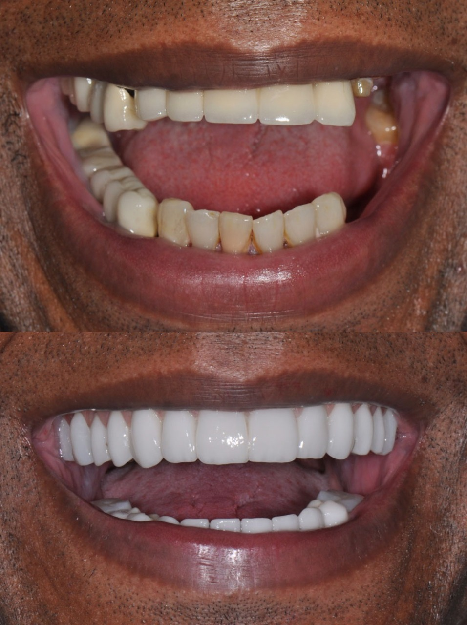 David before and after 1 - The cost of dental implants in Cali, Colombia