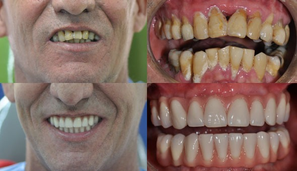 All on Five before and after - the cost of dental implants in Cali, Colombia