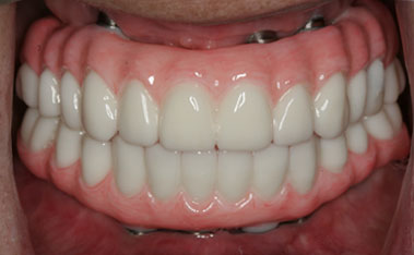All on Four - Cost of Dental Implants in Cartagena, Colombia