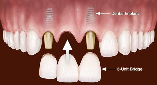 Implant supported bridge - Cost of Dental Implants in Cartagena, Colombia