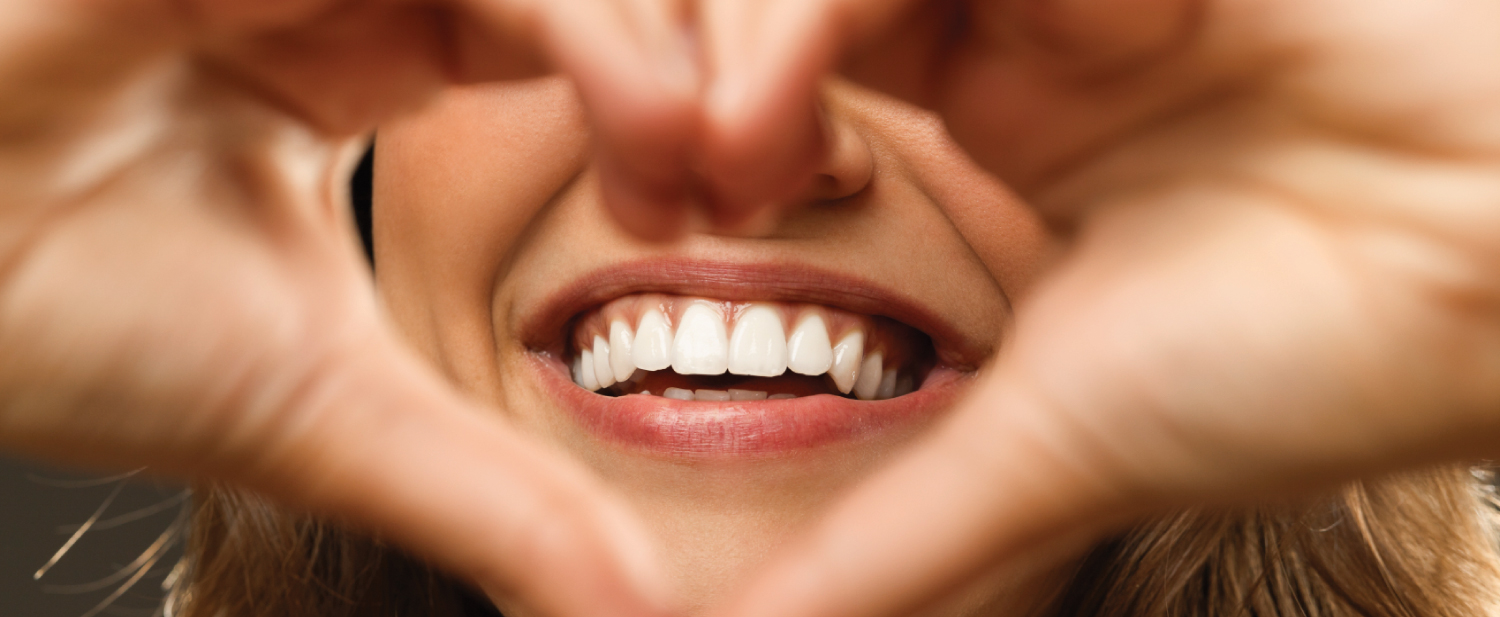 Smile - Cost of Dental Implants in Cartagena, Colombia