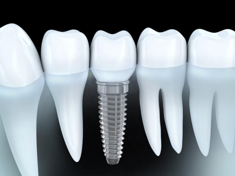 Single Implant - Cost of Dental Implants in Bogota, Colombia