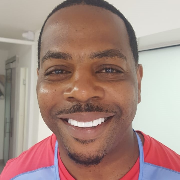Porcelain veneers by Dr. Julio Oliver - The Cost of Dental Work in Cartagena, Colombia