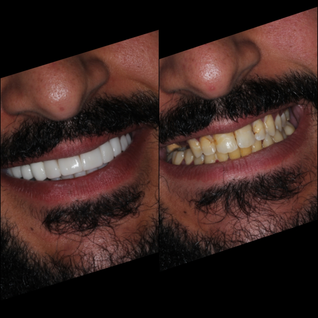 Porcelain veneers and porcelain crowns before and after (Dr. Julio Oliver) - The Cost of Dental Work in Cartagena, Colombia