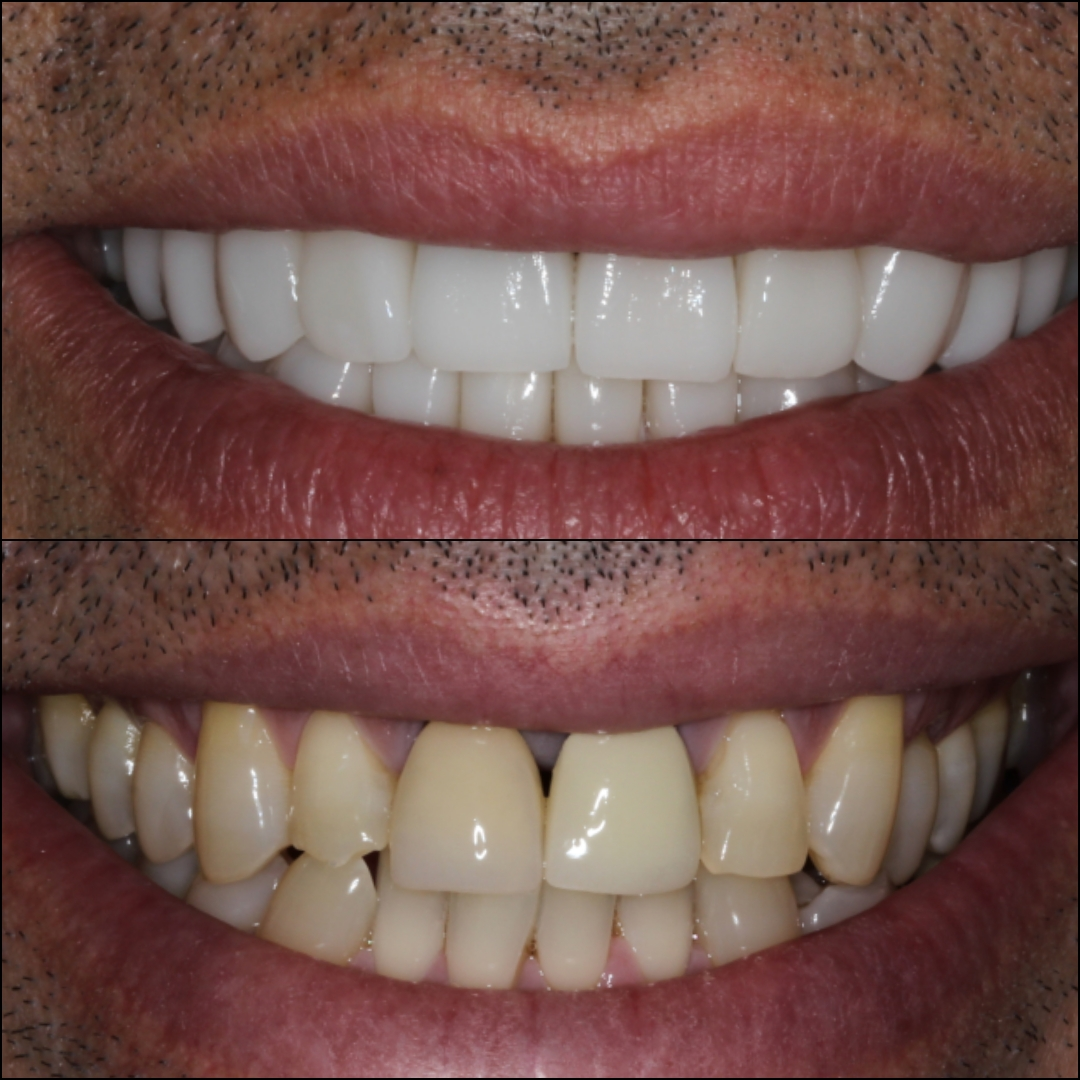 Porcelain veneers before and after - Why Everyone Comes To Cartagena, Colombia To Get Cosmetic Dental Work