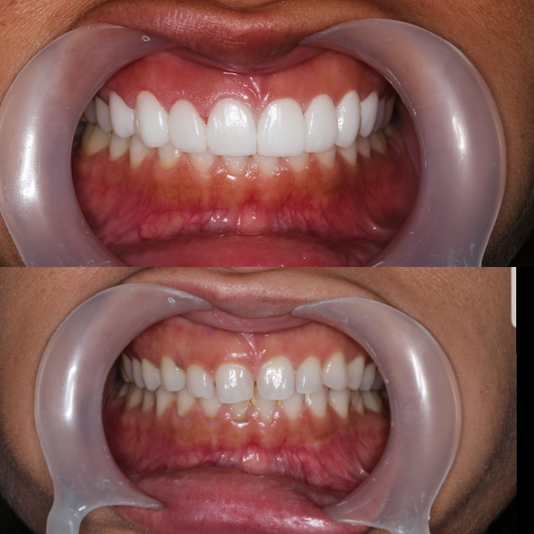 Cristina Porcelain Veneers in Cartagena Before After - Dental Tourism Colombia (Dr. Julio Oliver)