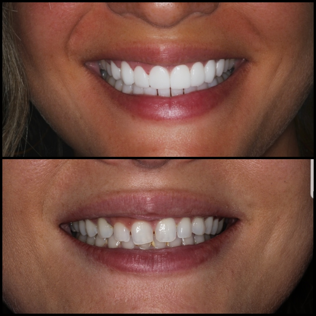 Cristina 2 Porcelain Veneers Before After - Dental Tourism Colombia (Dr. Julio Oliver, Cartagena)