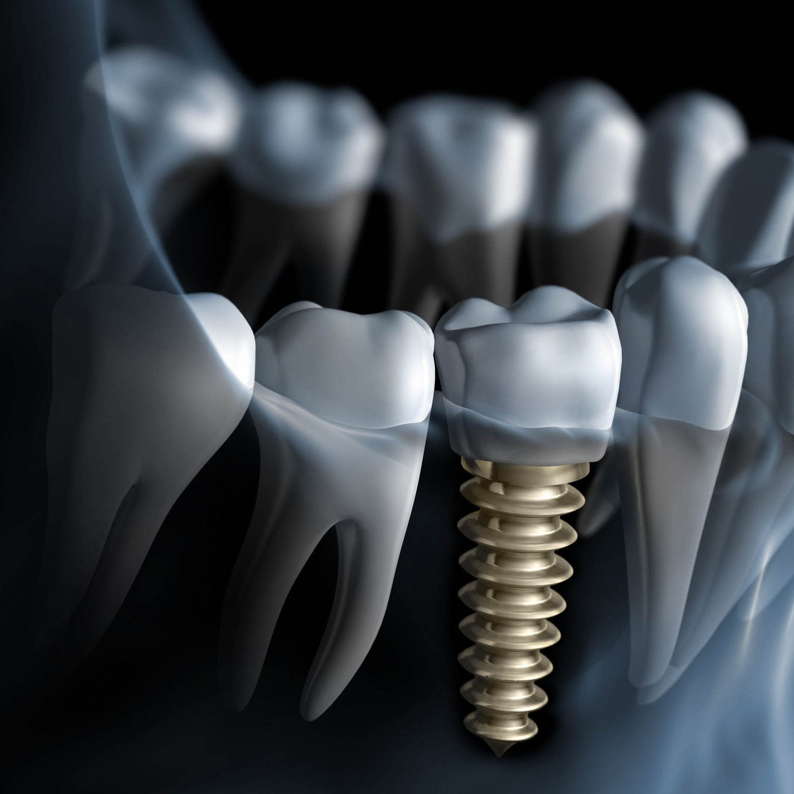 Single Dental Implant in Colombia