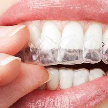 Teeth Whitening Take Home Kit in Colombia