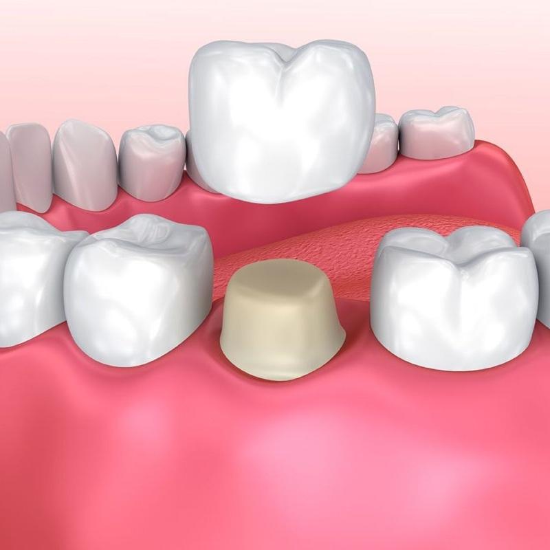 Procedure diagram of a dental crown in Colombia
