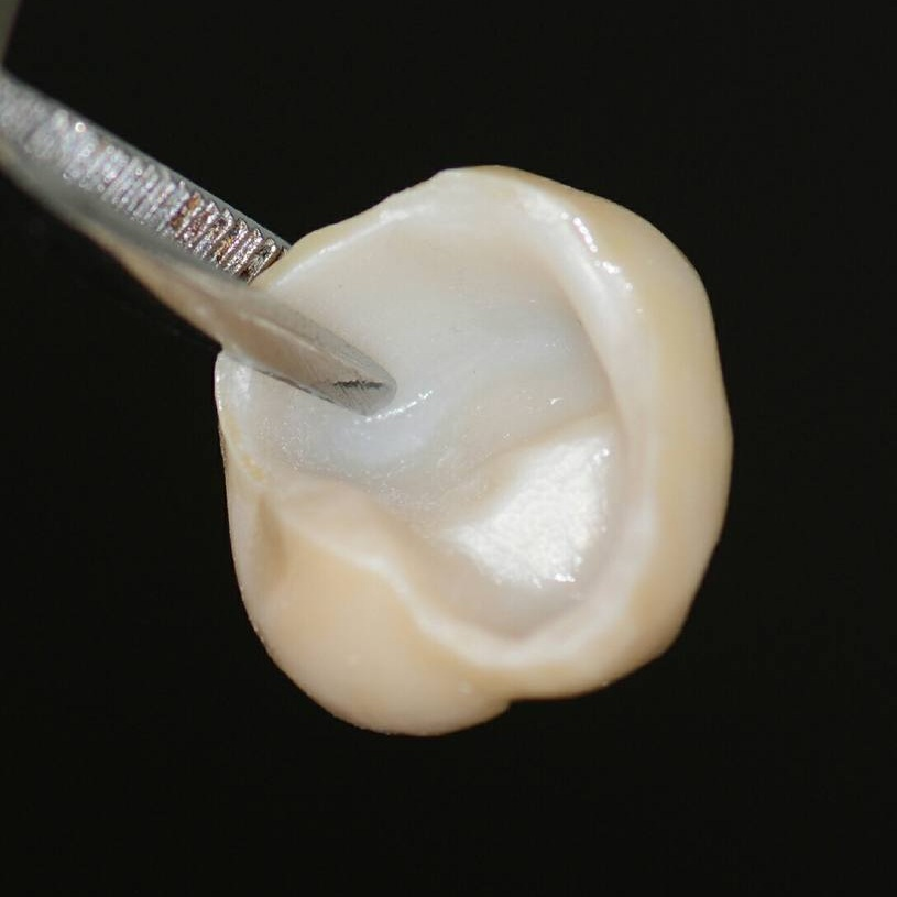 Example of a Dental Crown in Colombia