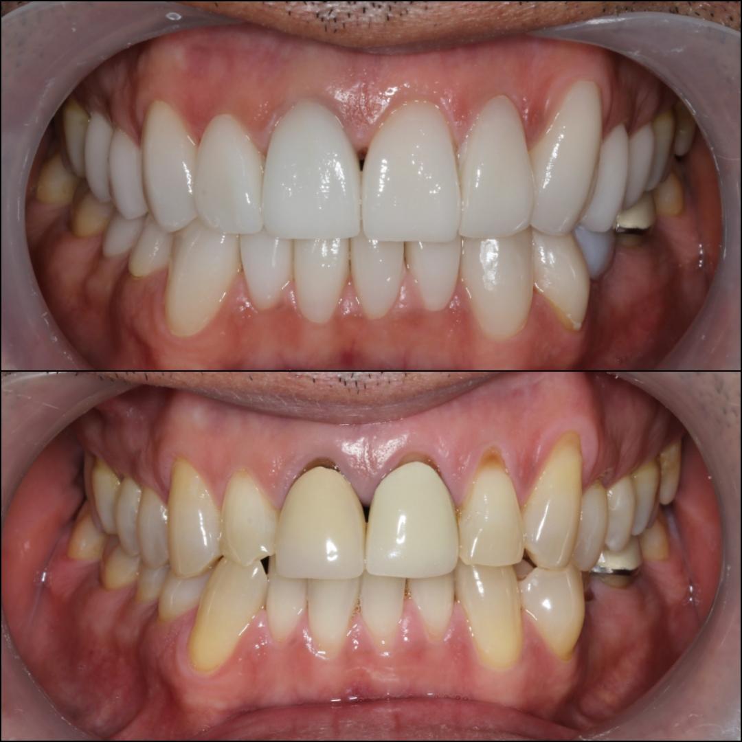 Mark Porcelain Crown 2 Before After - Dental Tourism Colombia Review Testimonial - Dr. Julio Oliver Cartagena