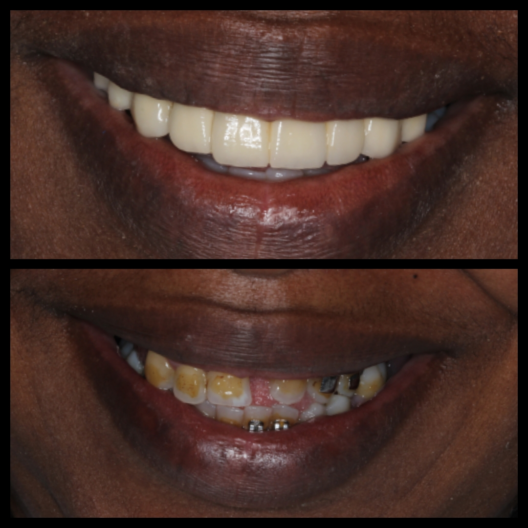 Tracey Porcelain Crowns Before and After - Dental Tourism Colombia (Dr. Julio Oliver, Cartagena)