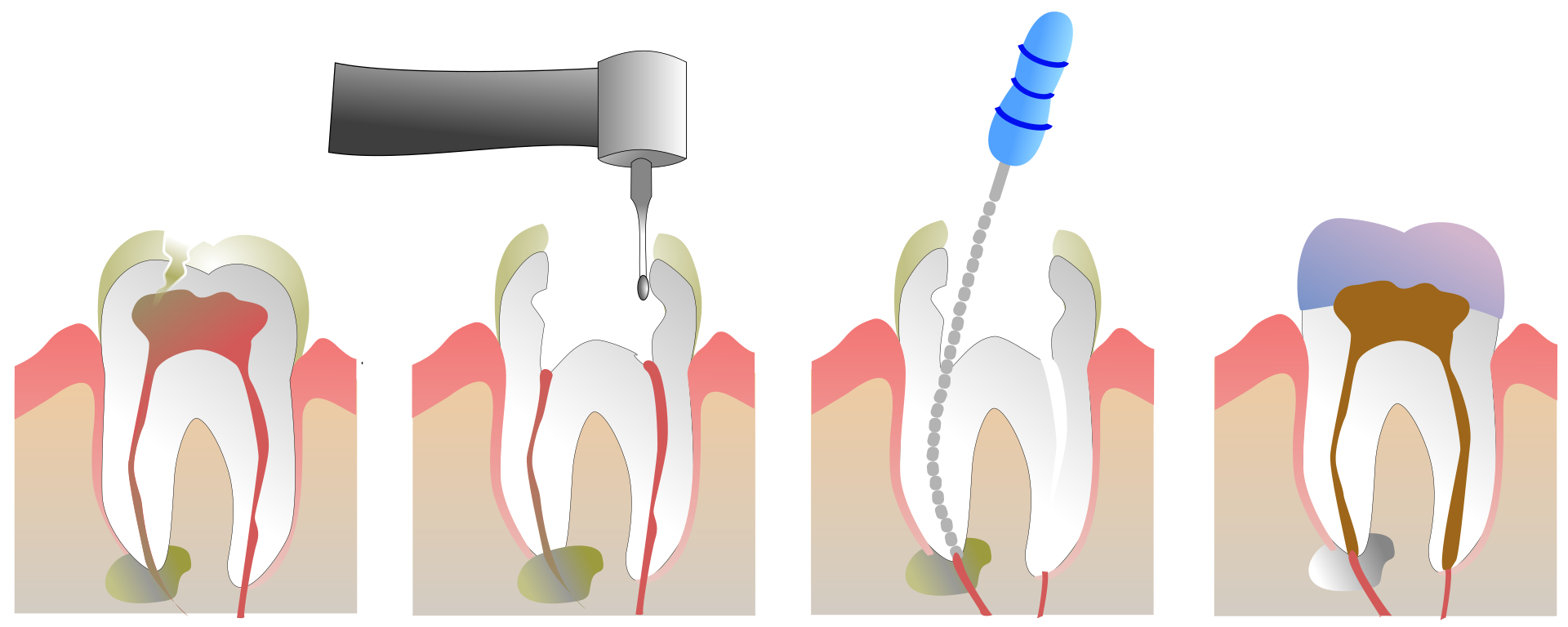 Root Canal Treatment in Colombia (Dental Tourism Colombia)