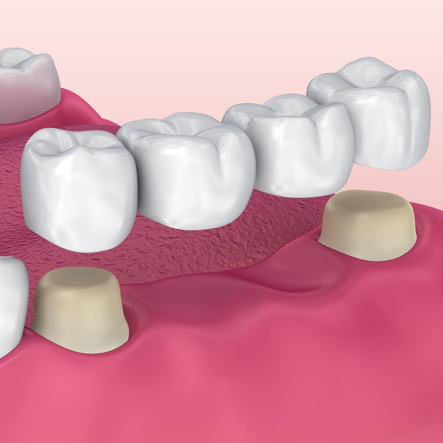 4 Unit Bridge (Crown Supported) - Dental Tourism Colombia