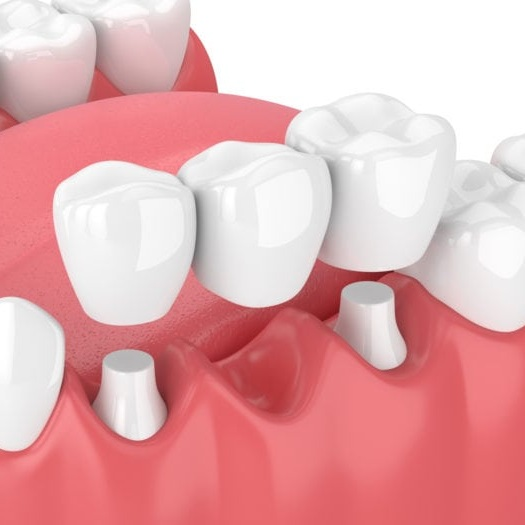 Dental Bridges In Colombia Cost Of Porcelain 2 Unit
