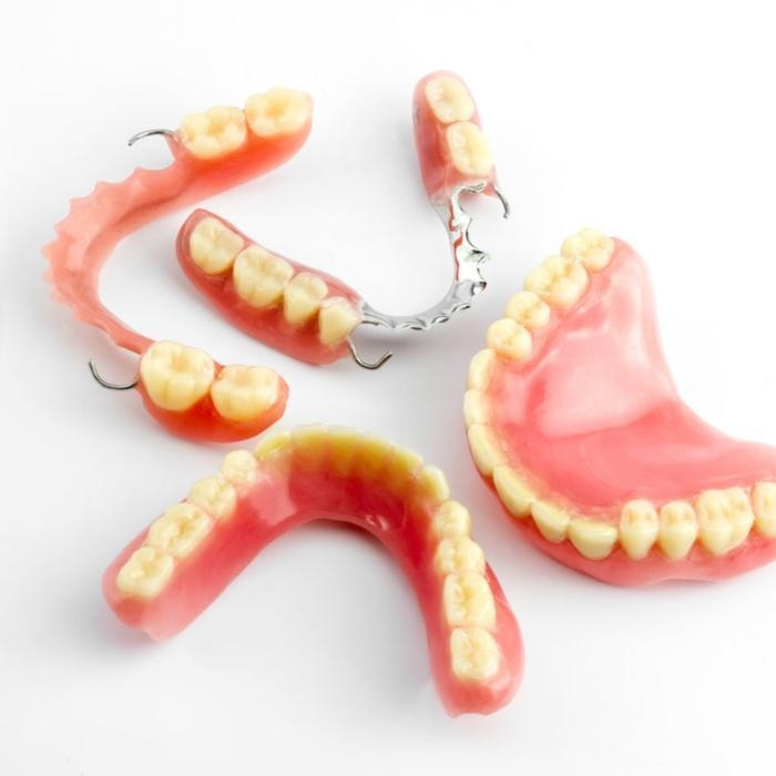 Partial Dentures in Colombia (Dental Tourism Colombia)