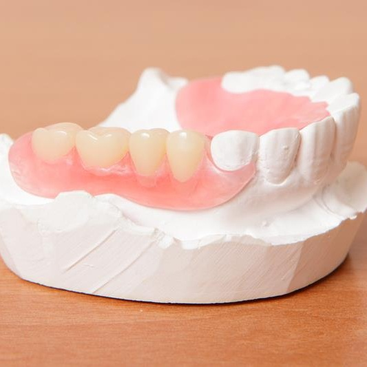 Partial Denture in mold in Colombia (Dental Tourism Colombia)