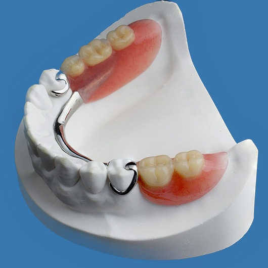 Lower Partial Denture in Colombia in Mold (Dental Tourism Colombia)